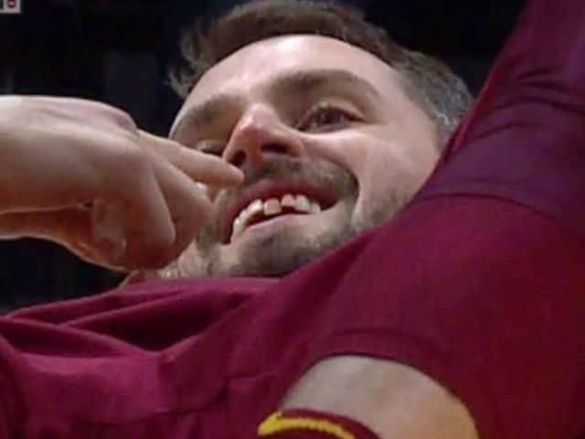 Kevin Love s'est cassé une dent contre Miami