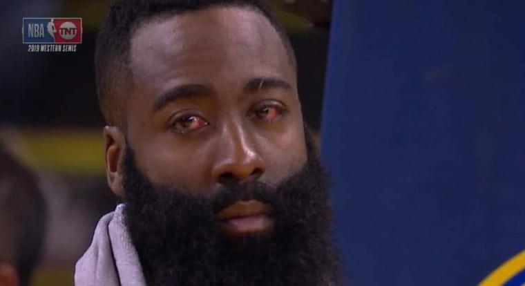 James Harden les yeux en sang : «Je ne vois rien»